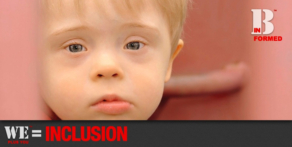 Be Informed_Workforce Development_We Plus You Equals Inclusion_Close up photo of baby boy with big blue eyes and down syndrome looking into camera